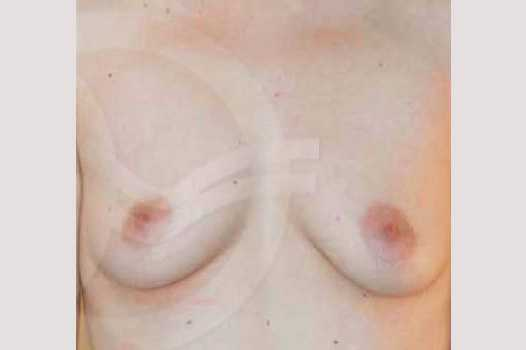 Breast Augmentation 400  Silicone Implants before forntal