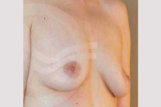 Breast Augmentation 400  Silicone Implants before side
