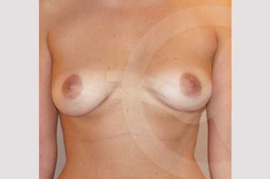 Breast Augmentation 380cc High Profile before forntal