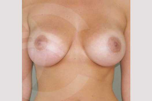 Breast Augmentation 380cc High Profile after frontal