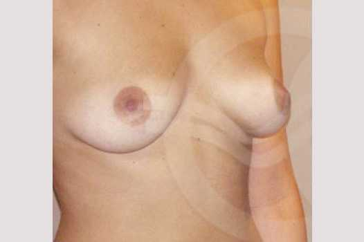 Breast Augmentation 380cc High Profile before side