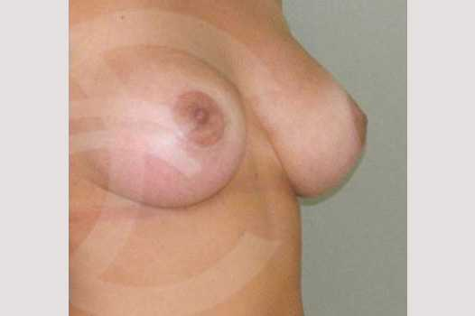 Breast Augmentation 380cc High Profile after side