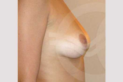 Breast Augmentation 380cc High Profile before profile