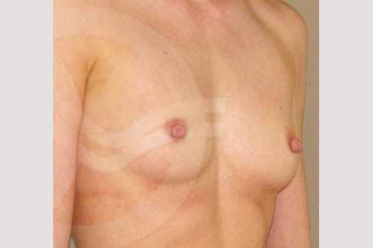 Breast Augmentation 350cc High Profile before side