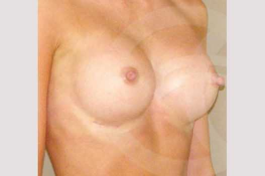 Breast Augmentation 350cc High Profile after side