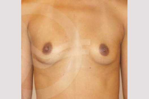 Breast Augmentation 325cc Submuscular before forntal
