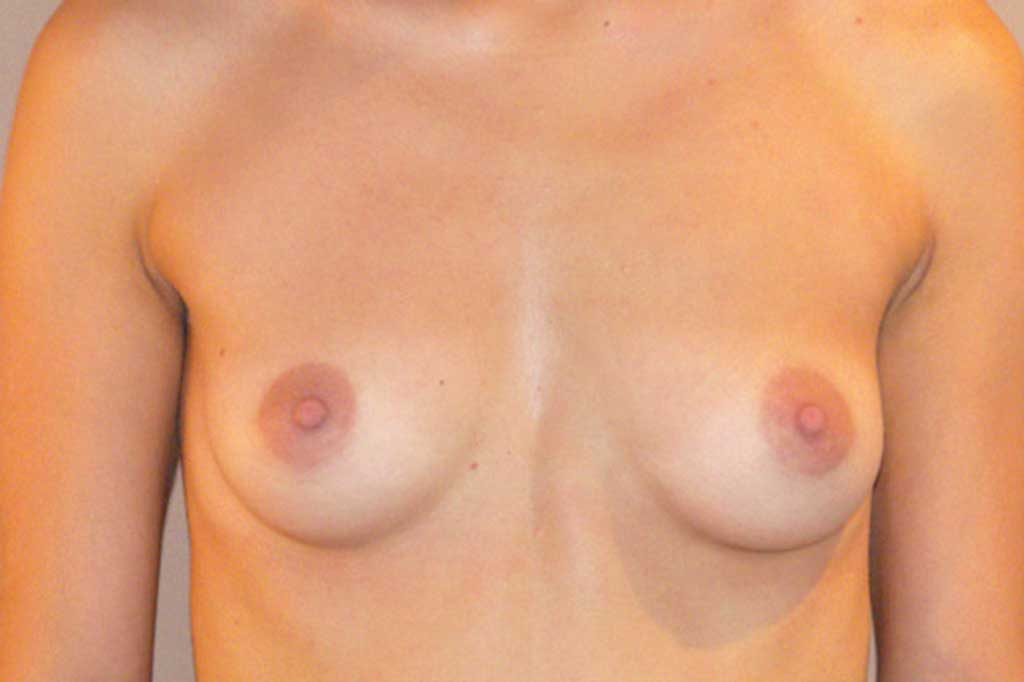 Breast Augmentation 300cc High Profile before forntal