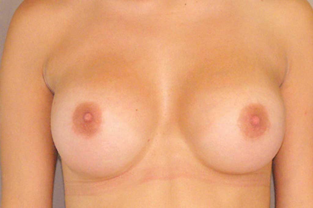 Breast Augmentation 300cc High Profile after frontal