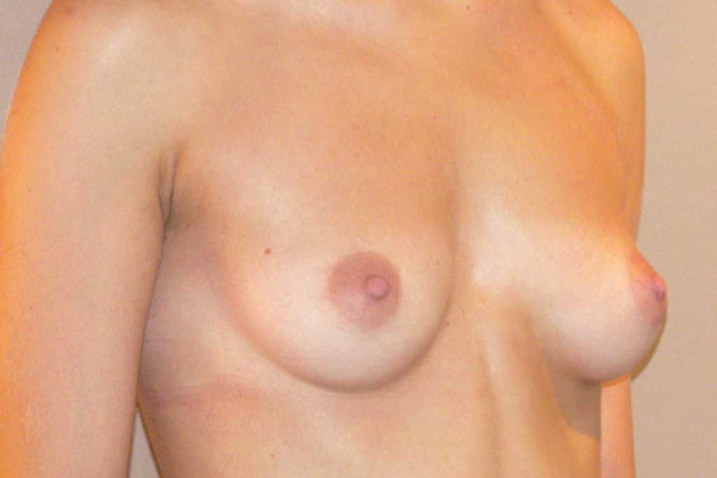Breast Augmentation 300cc High Profile before side