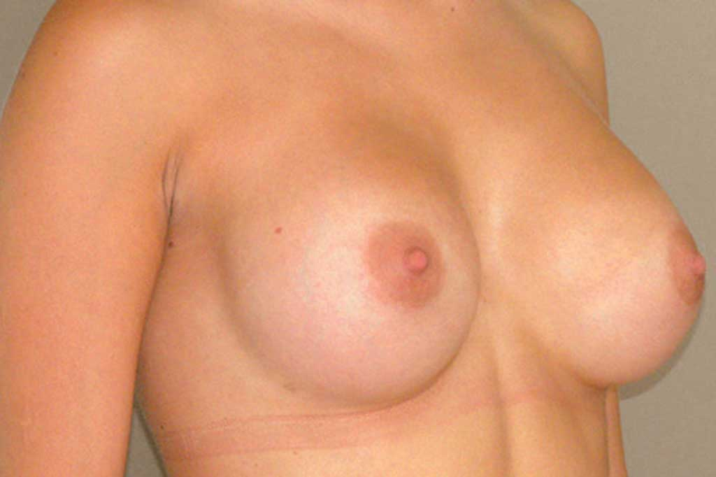 Breast Augmentation 300cc High Profile after side