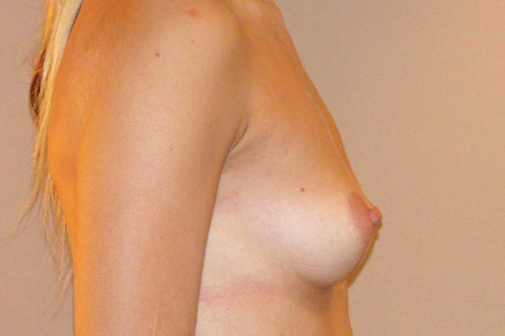 Breast Augmentation 300cc High Profile before profile
