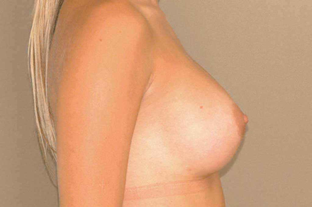 Breast Augmentation 300cc High Profile after profile