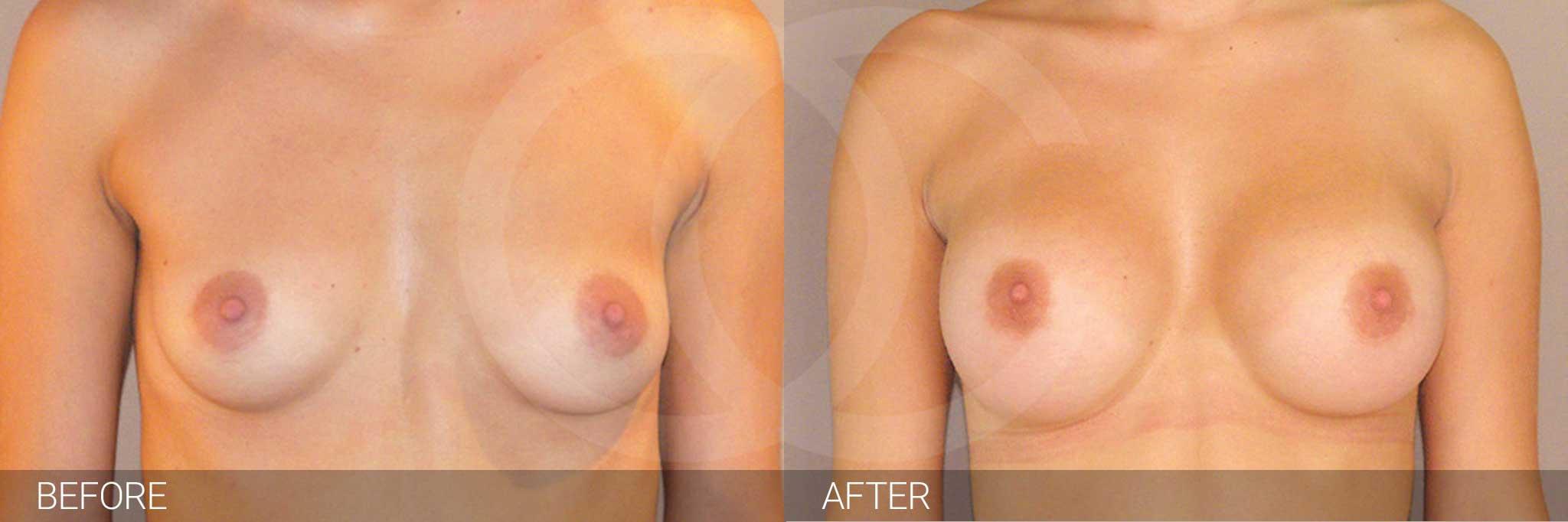 Augmentation mammaire Prothèses mammaires en silicone 300cc profil haut ante/post-op I
