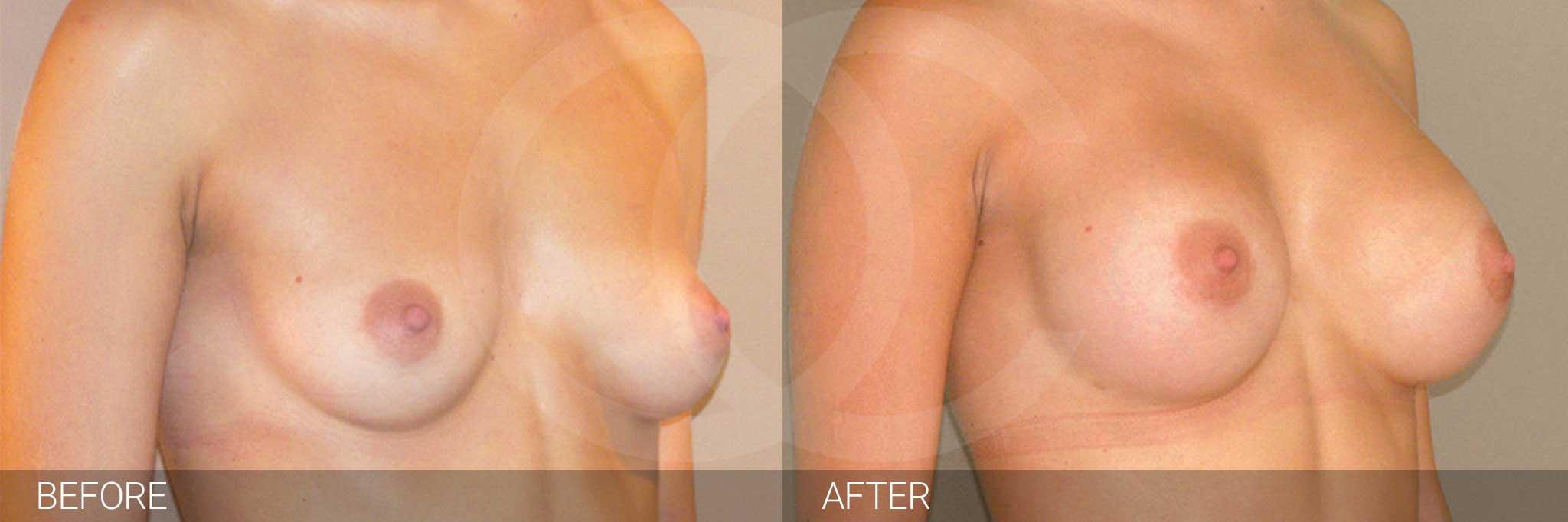 Augmentation mammaire Prothèses mammaires en silicone 300cc profil haut ante/post-op II