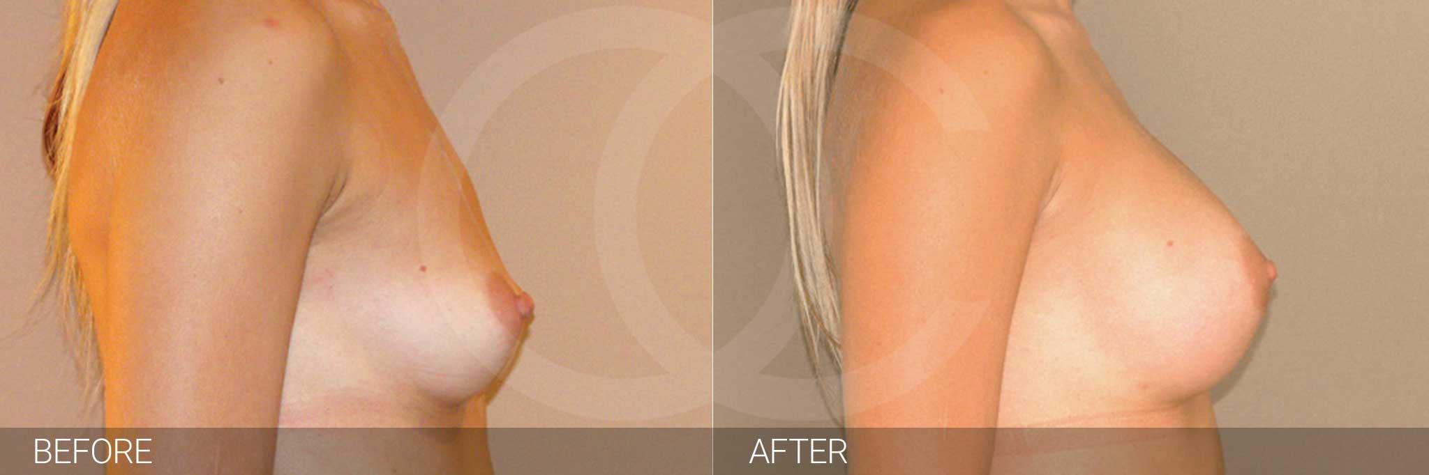 Augmentation mammaire Prothèses mammaires en silicone 300cc profil haut ante/post-op III