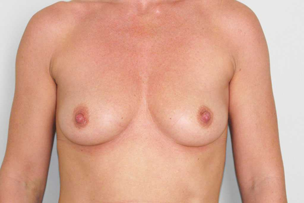 Breast Augmentation Submuscular implant before forntal