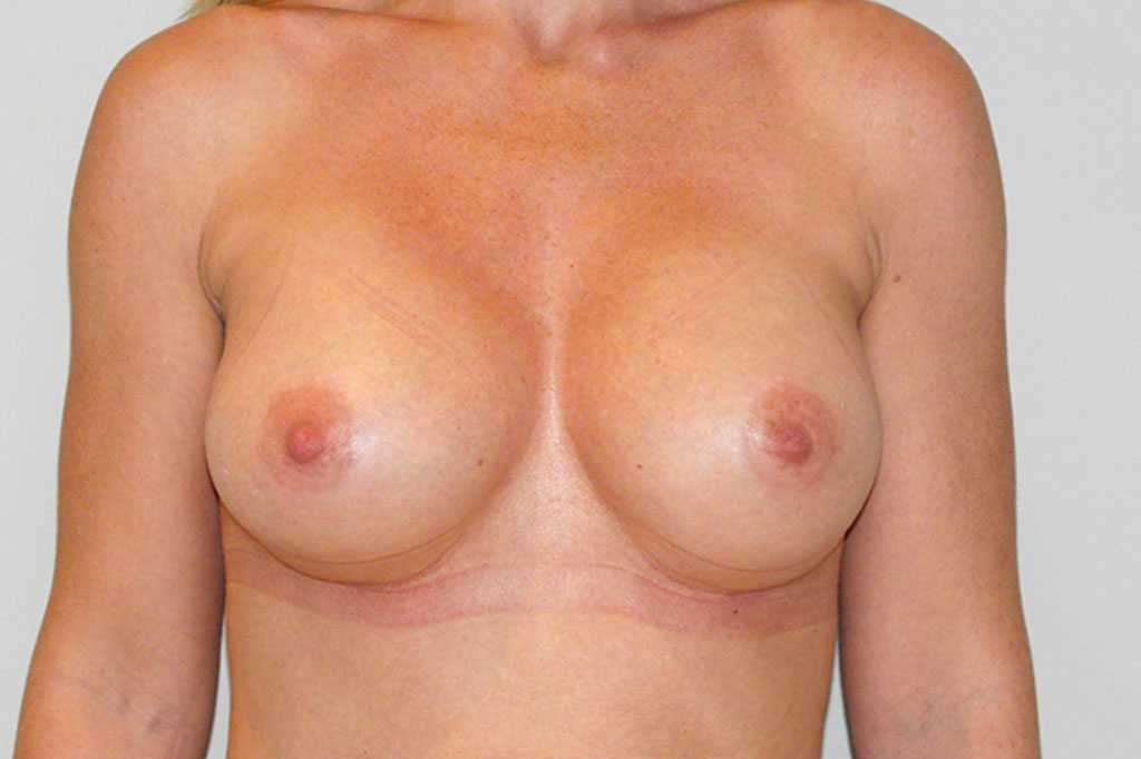 Breast Augmentation Submuscular implant after frontal