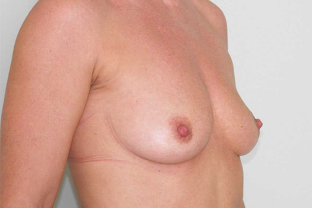 Breast Augmentation Submuscular implant before side