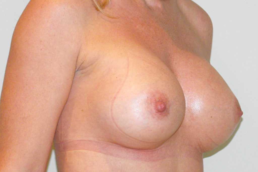 Breast Augmentation Submuscular implant after side