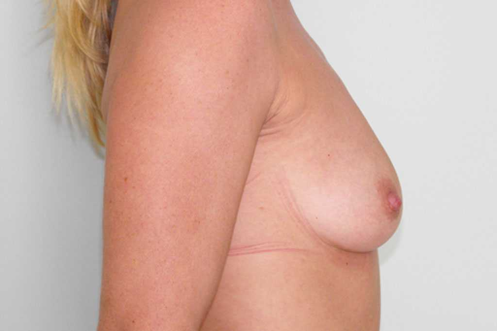 Breast Augmentation Submuscular implant before profile