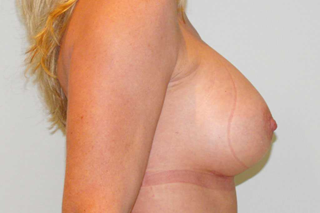 Breast Augmentation Submuscular implant after profile