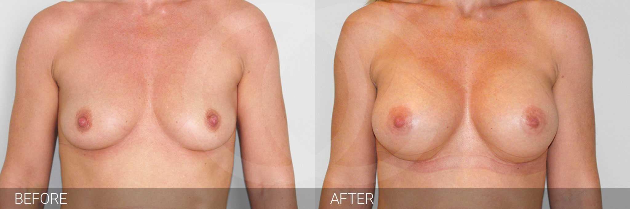 Brustvergrößerung Submuskuläre Implantatposition ante/post-op I