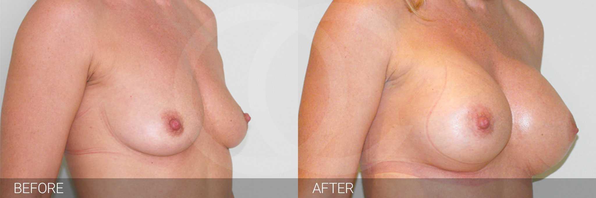 Brustvergrößerung Submuskuläre Implantatposition ante/post-op II