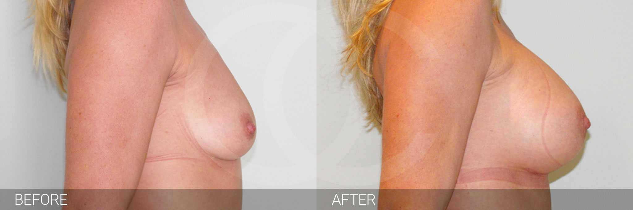 Augmentation mammaire implants mammaires en silicone sous le muscle ante/post-op III