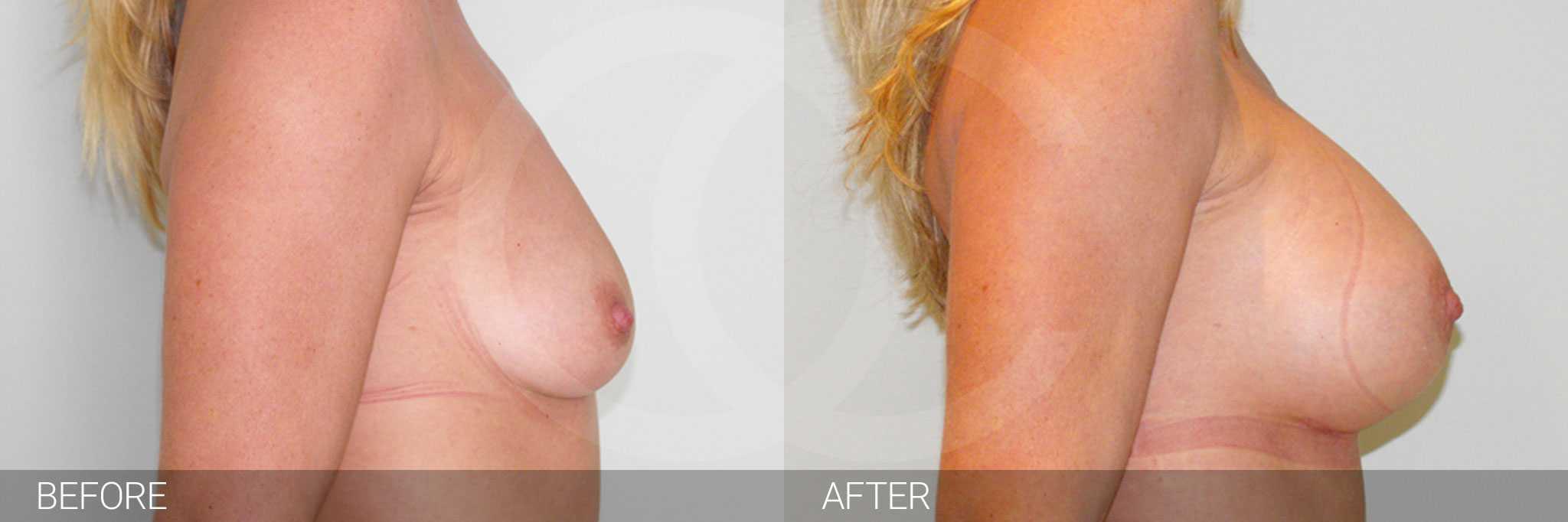 Brustvergrößerung Submuskuläre Implantatposition ante/post-op III