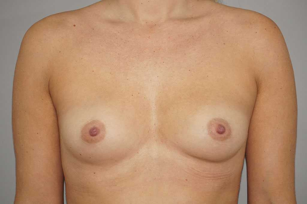 Breast Augmentation Anatomic 280cc before forntal