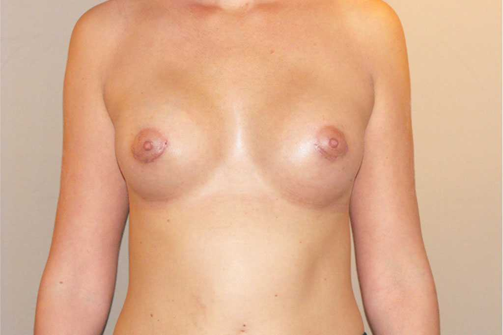 Breast Augmentation with silicone implants after frontal