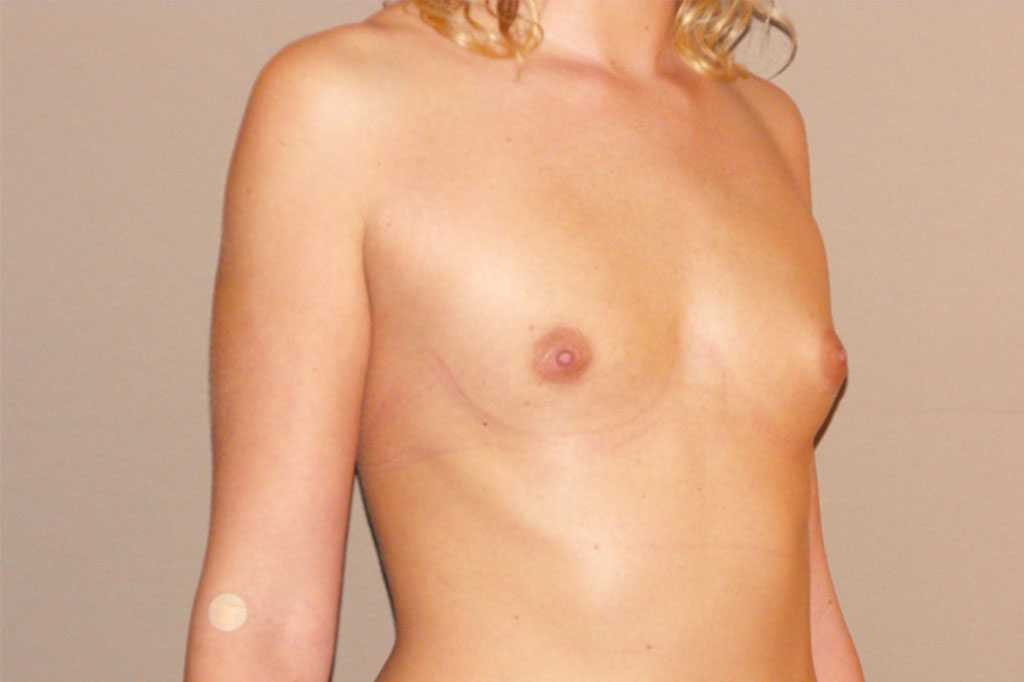 Breast Augmentation with silicone implants before side