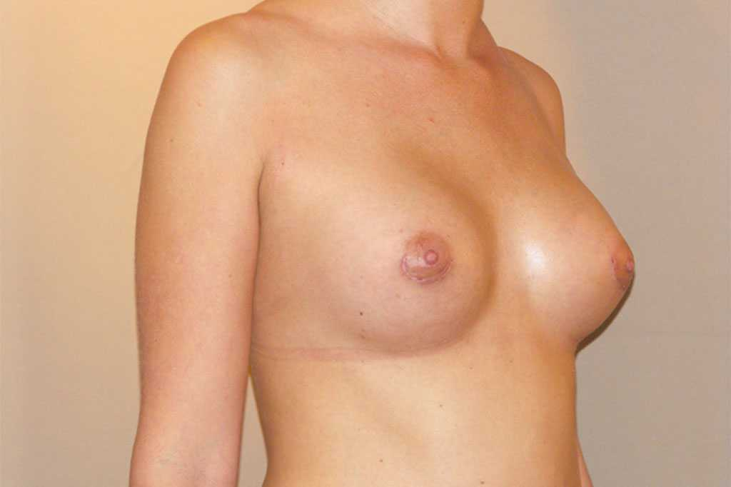 Breast Augmentation with silicone implants after side