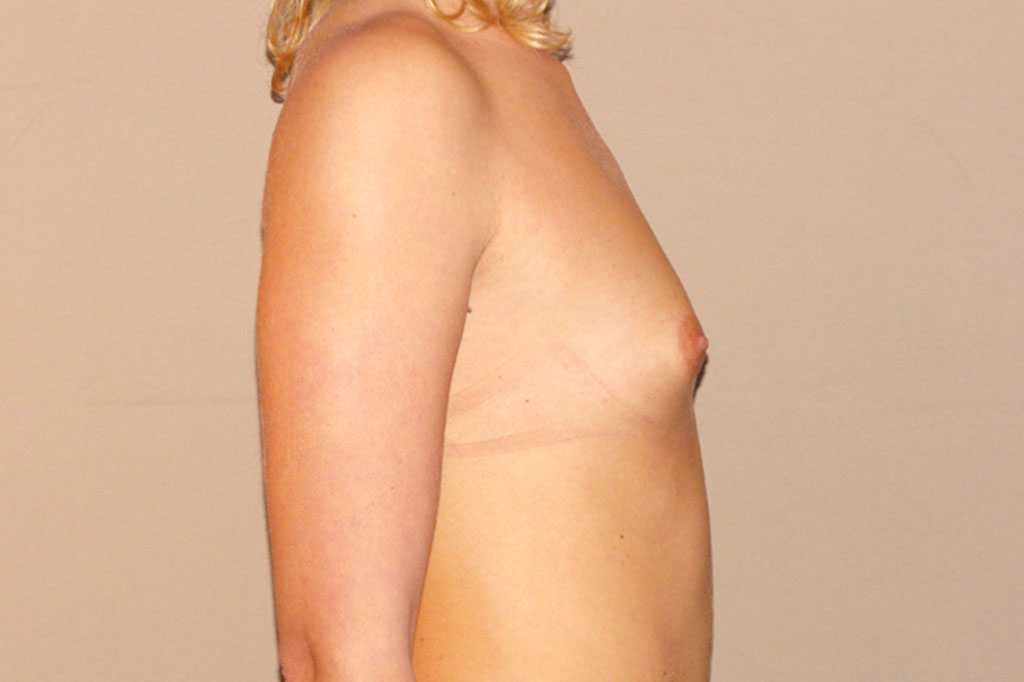 Breast Augmentation with silicone implants before profile