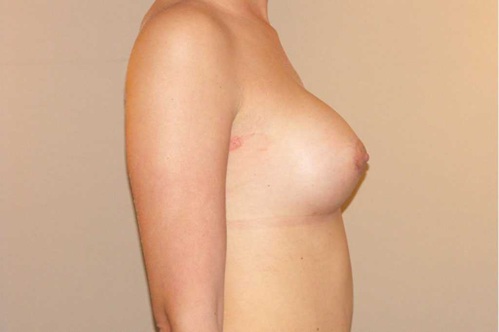 Breast Augmentation with silicone implants after profile