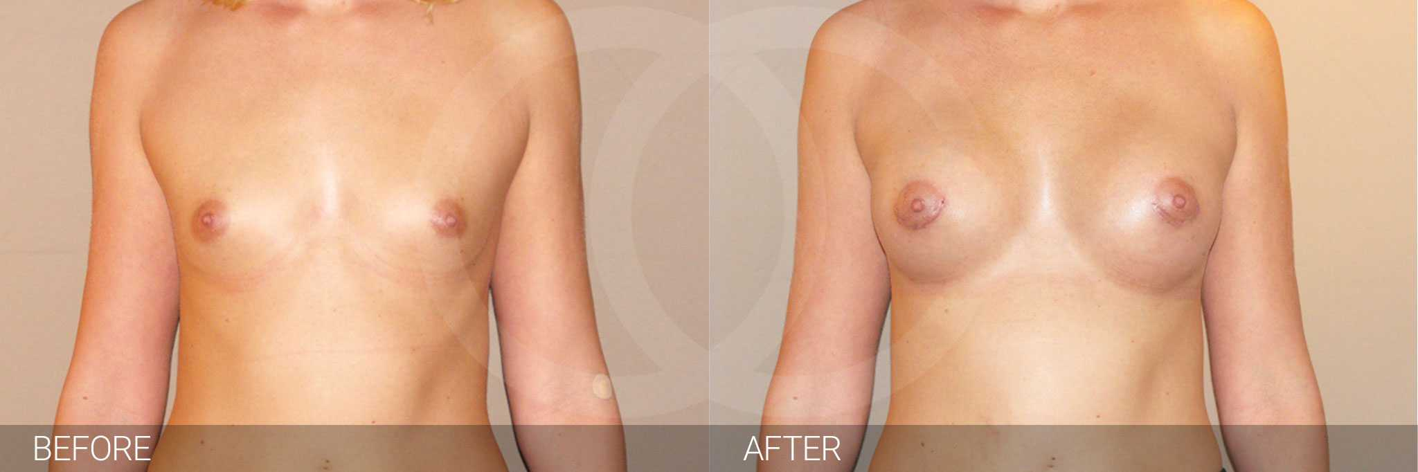 Augmentation mammaire Prothèse en silicone ante/post-op I