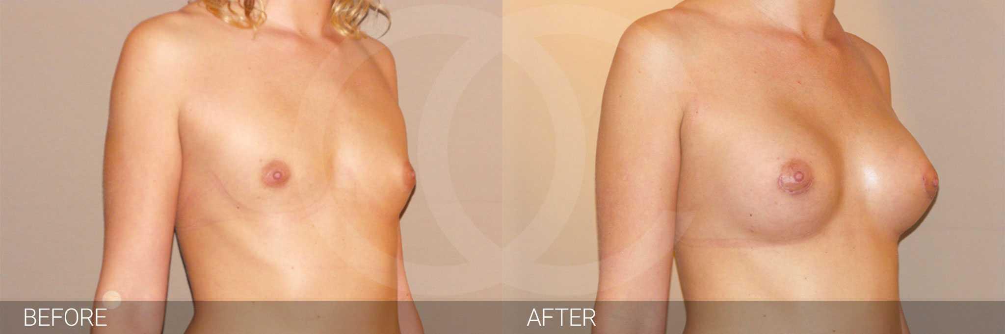 Augmentation mammaire Prothèse en silicone ante/post-op II