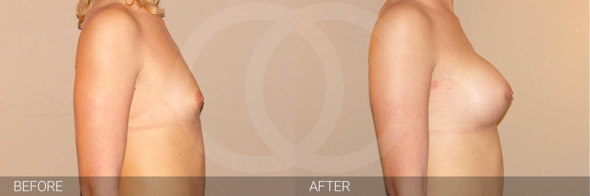 Augmentation mammaire Prothèse en silicone ante/post-op III