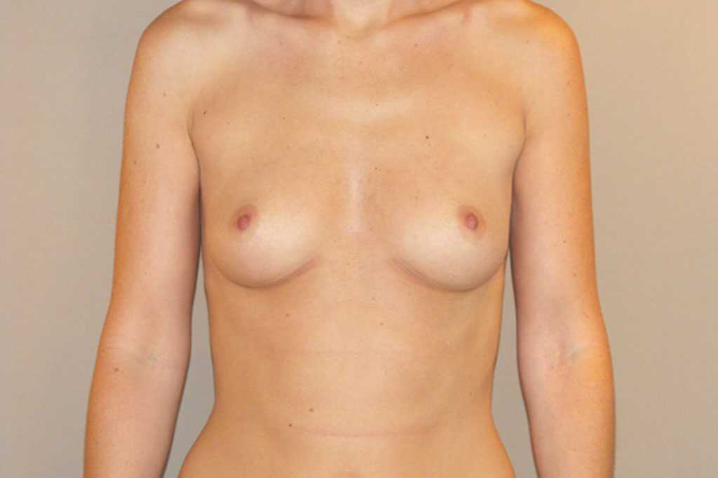 Breast Augmentation Subglandular position before forntal