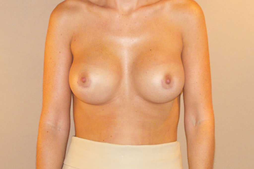 Breast Augmentation Subglandular position after frontal