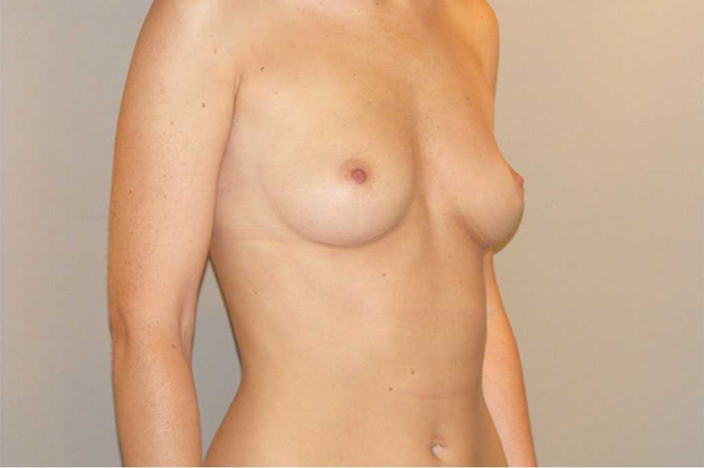 Breast Augmentation Subglandular position before side