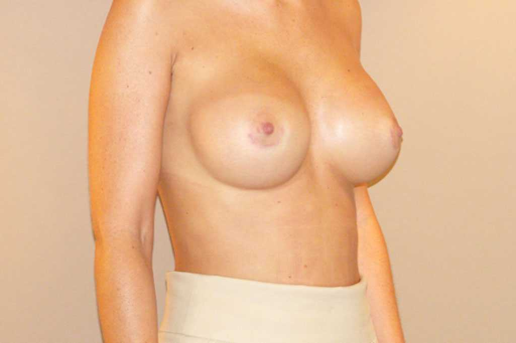 Breast Augmentation Subglandular position after side