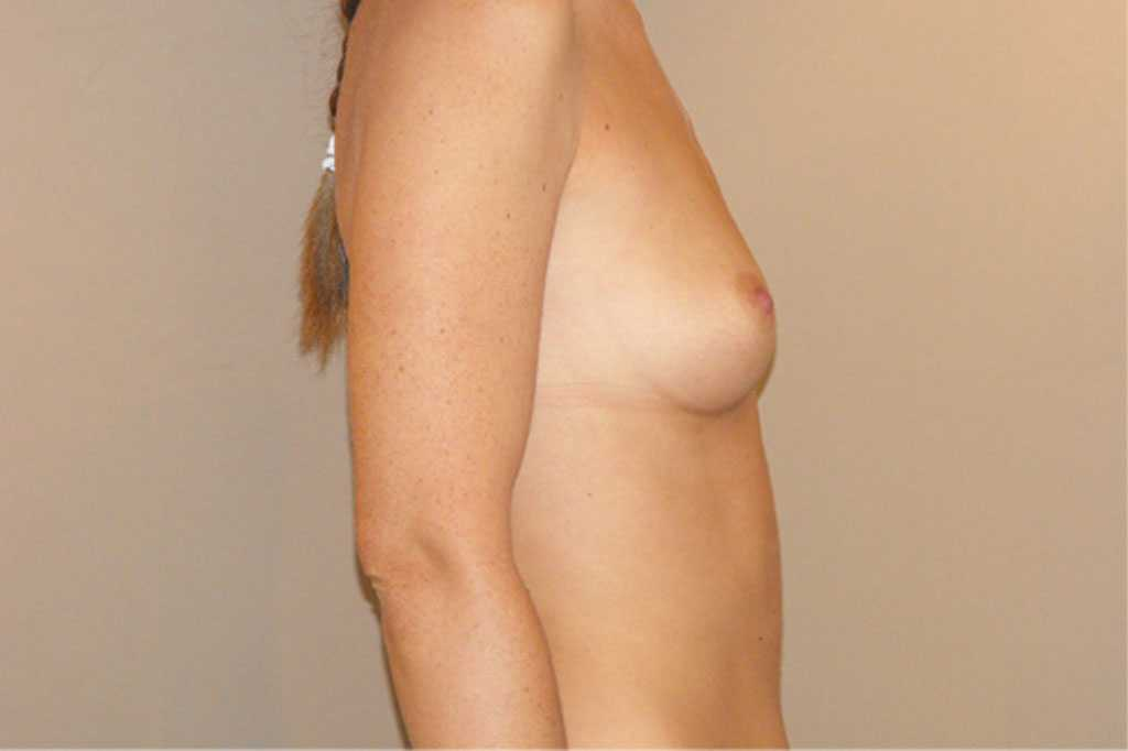 Breast Augmentation Subglandular position before profile
