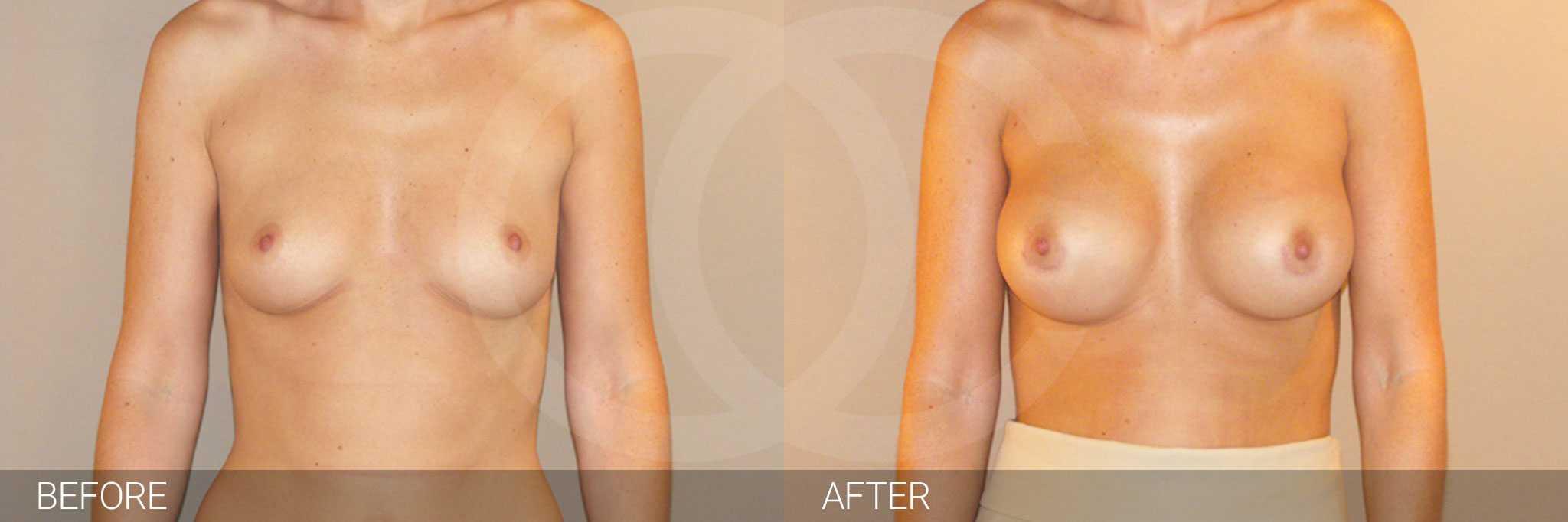 Augmentation mammaire Prothèses silicone position sous-glandulaire ante/post-op I
