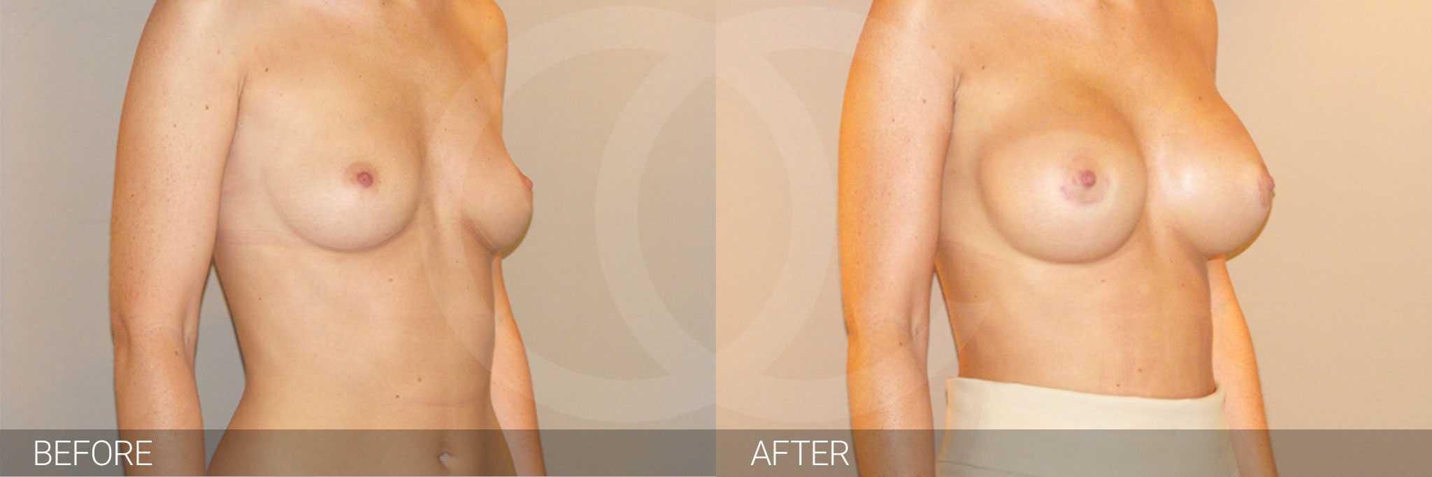 Augmentation mammaire Prothèses silicone position sous-glandulaire ante/post-op II