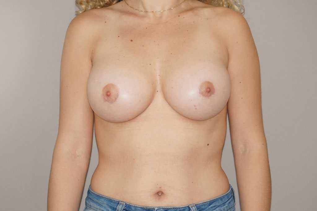 Breast Augmentation Periareolar access after frontal