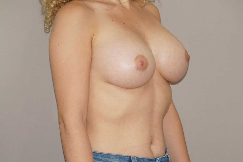 Breast Augmentation Periareolar access after side