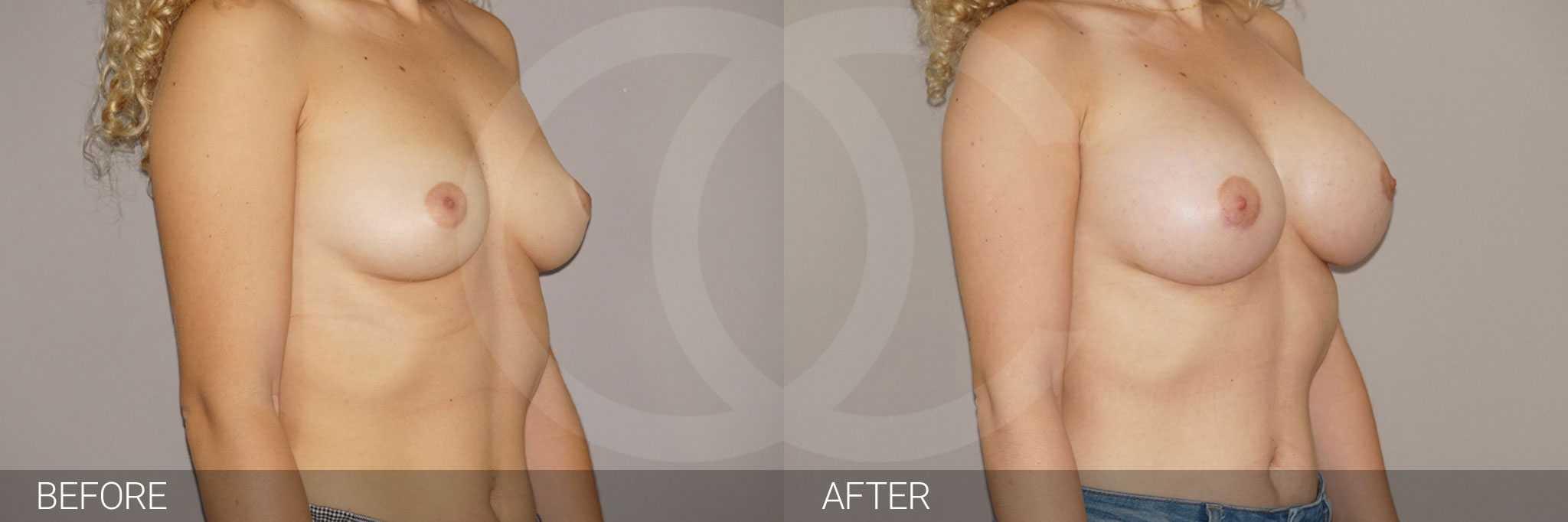Antes y después Incisión periareolar ante/post-op II