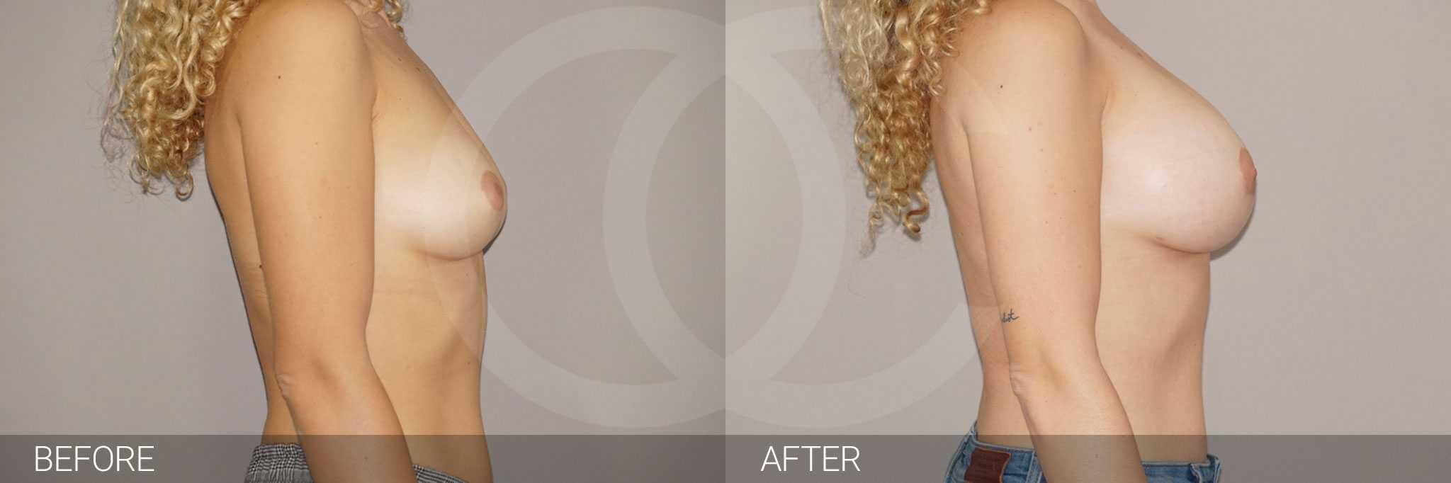 Antes y después Incisión periareolar ante/post-op III