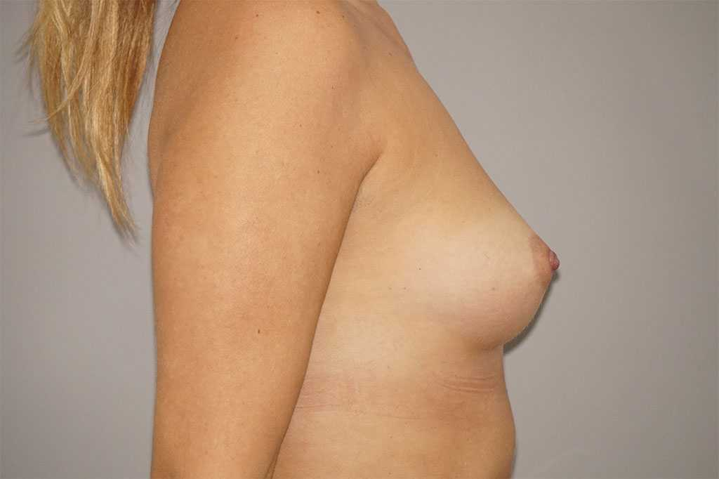 Breast Augmentation Anatomic 280cc before profile
